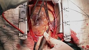 دل کو زندہ رکھنے والے اور دوا کو خارج سا یبورگ پیوند تیار !!!
