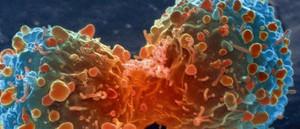 چینی سائنسدانوں نے کینسر کا نیا طریقہ علاج دریافت کرلیا